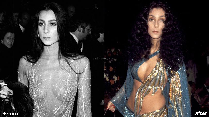 Cher boob job