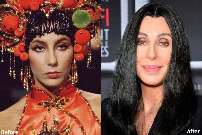 Cher nose job before & after