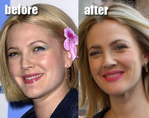 Drew Barrymore plastic surgery before and after