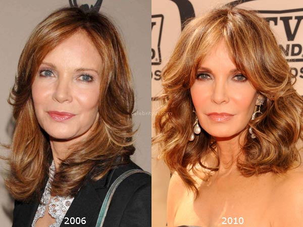 Jaclyn Smith Plastic Surgery Before And After Celebrity Dr