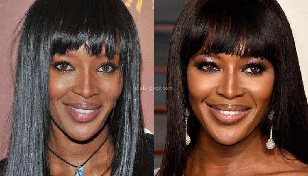 Naomi Campbell plastic surgery