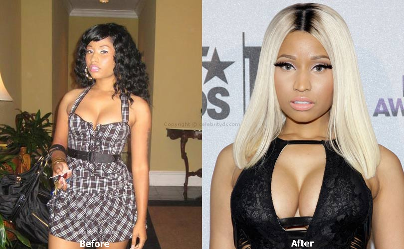 Nicki minaj before plastic surgeries