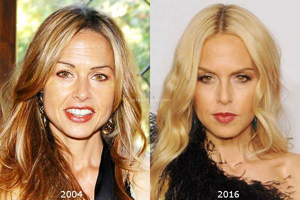 how to get rid of deep set wrinkles without surgery