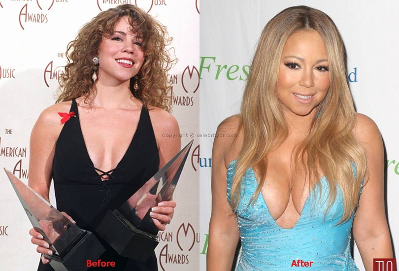 Mariah Carey breast implants before and after