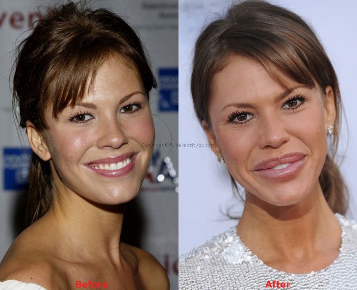 Nikki Cox lips before and after
