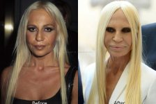 Donatella Versace plastic surgery before and after