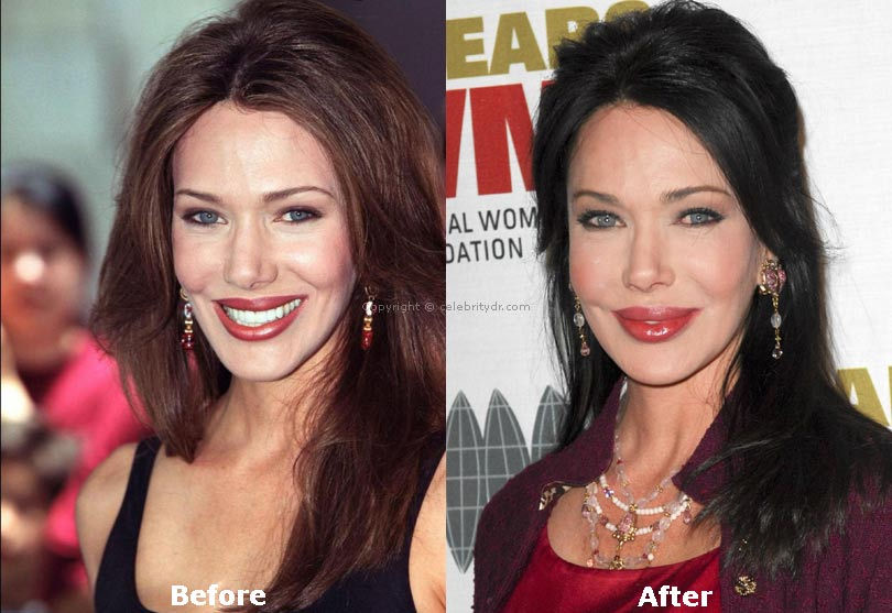 Hunter tylo plastic surgery a surgical mistake