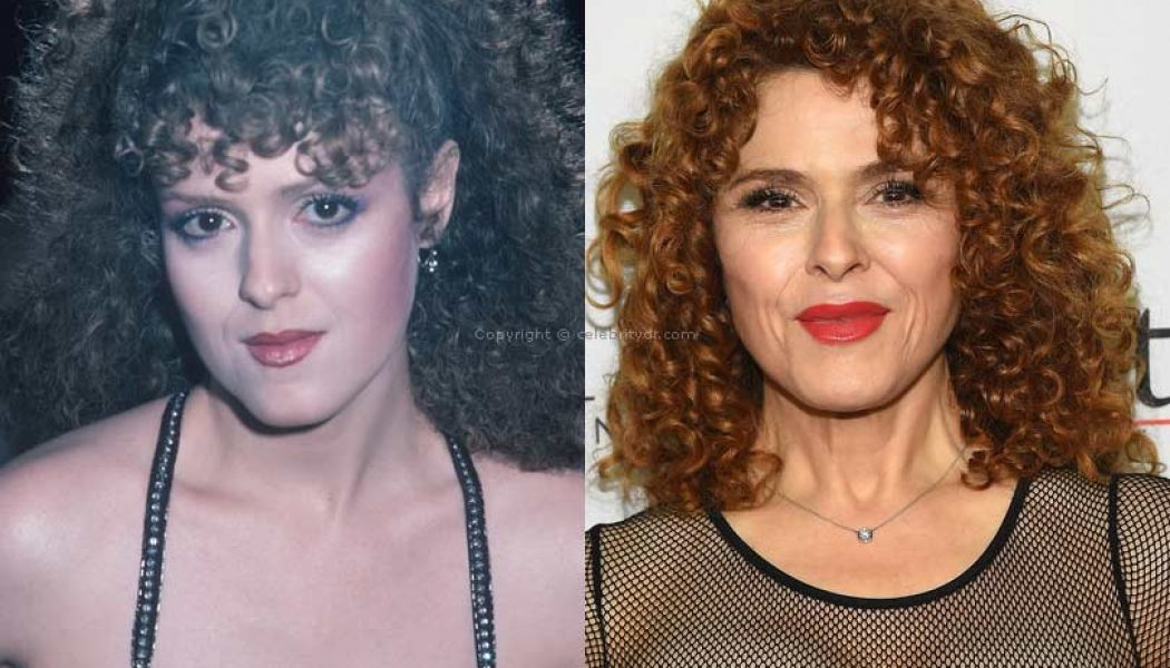 Bernadette Peters plastic surgery before and after
