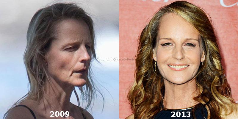 Helen Hunt plastic surgery photo